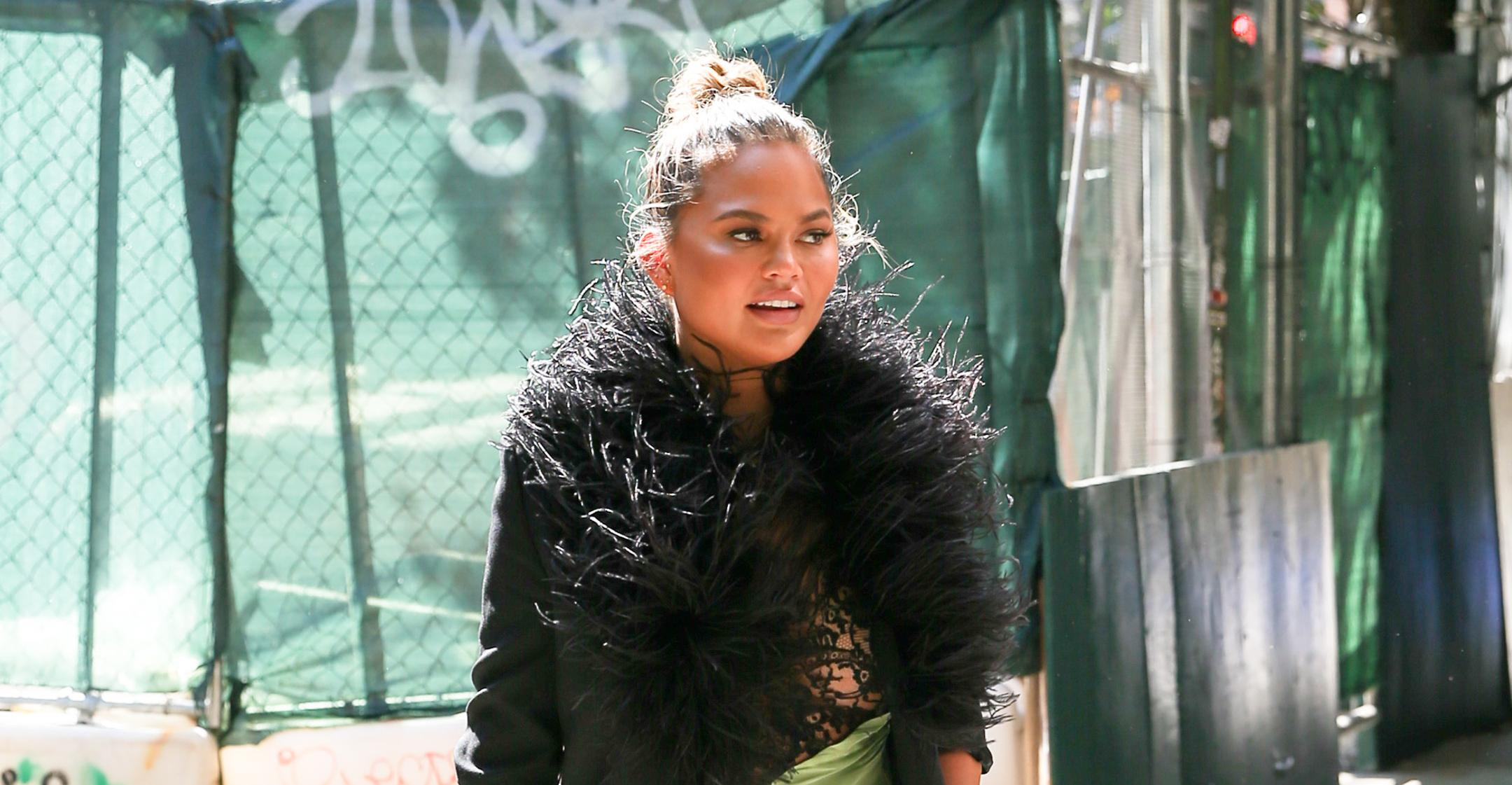chrissy teigen gets fat removed from cheeks shows slimmer face i like it