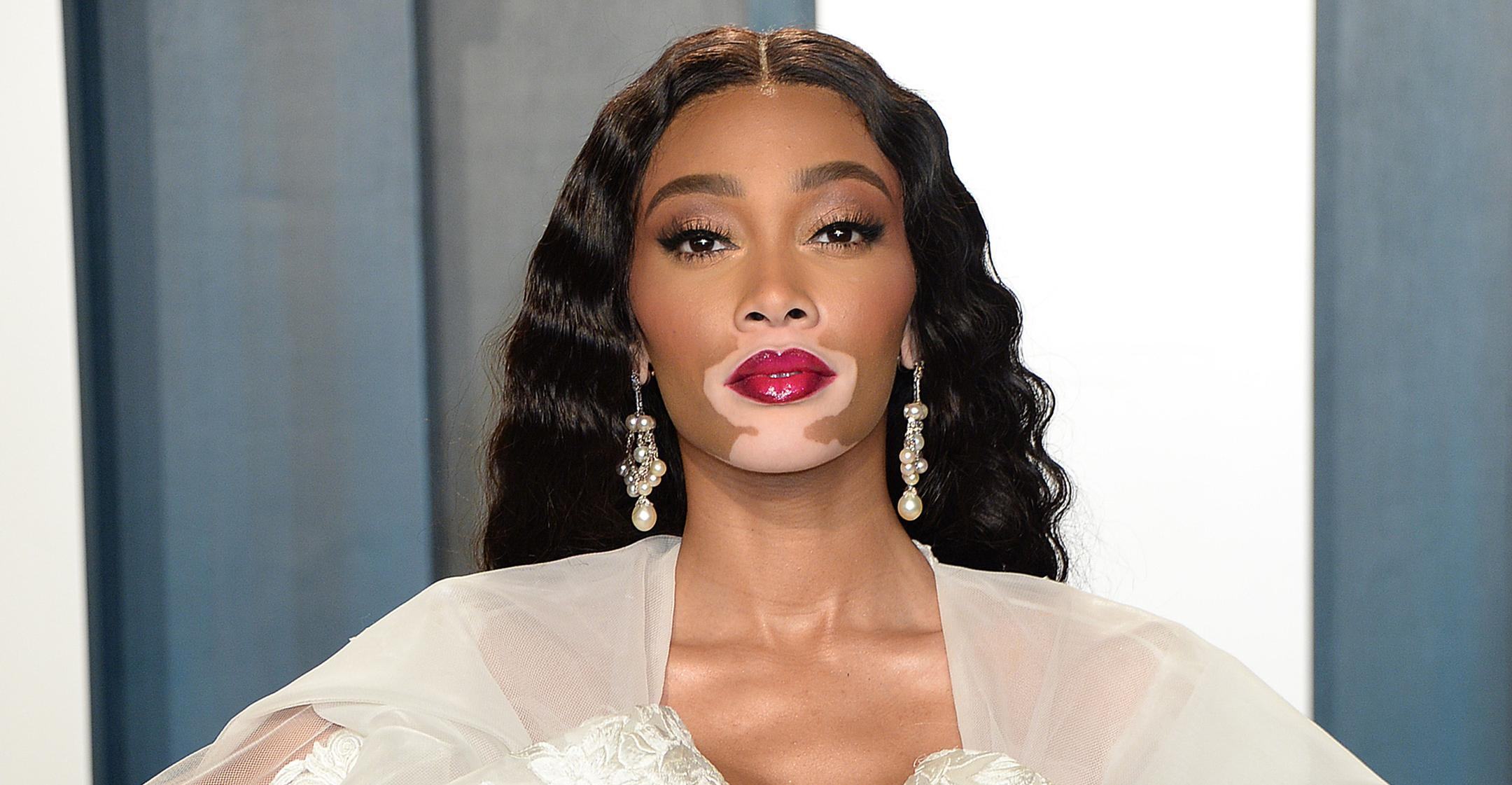 winnie harlow made to feel she couldnt succeed as model confidence helped persevere